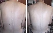 Healing Scoliosis Before & After Photo